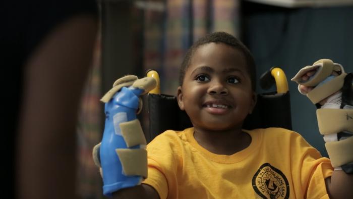 """על הילד הראשון בארה""""ב שעבר השתלה של כפות ידיים – על נסים רפואיים שהטכנולוגיה מאפשרת"""